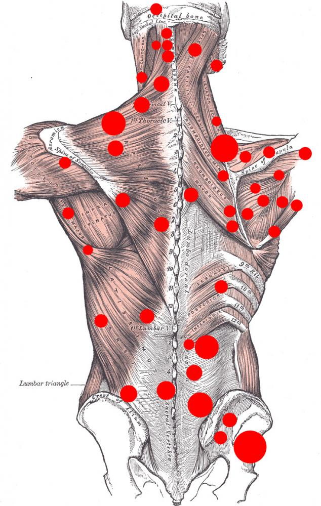 Trigger point dry needling los angeles