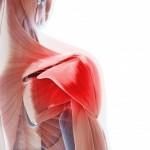 shoulder-pain-acupuncture-santa-monica