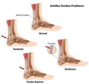 achilles tendon problems inflammation tendonitis