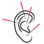 Ear Acupuncture Santa Monica Los Angeles